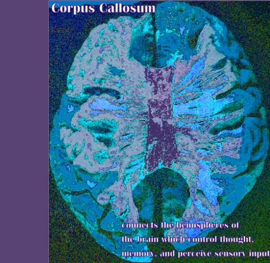 Corpus callosum (digital art by Anna Montgomery)
